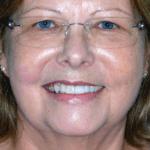 cosmetic dentist gold coast