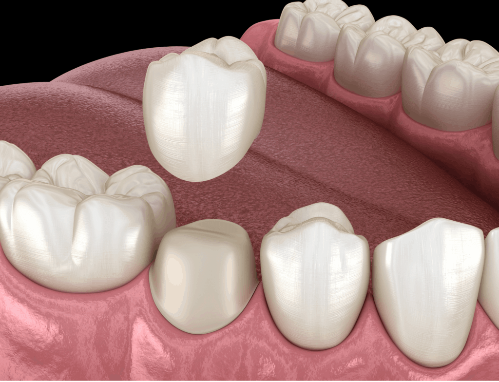 Dental Crown | ArtSmiles Gold Coast Dentists