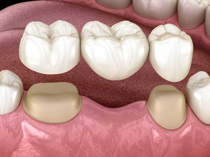 Dental Bridge | ArtSmiles Gold Coast Dentists
