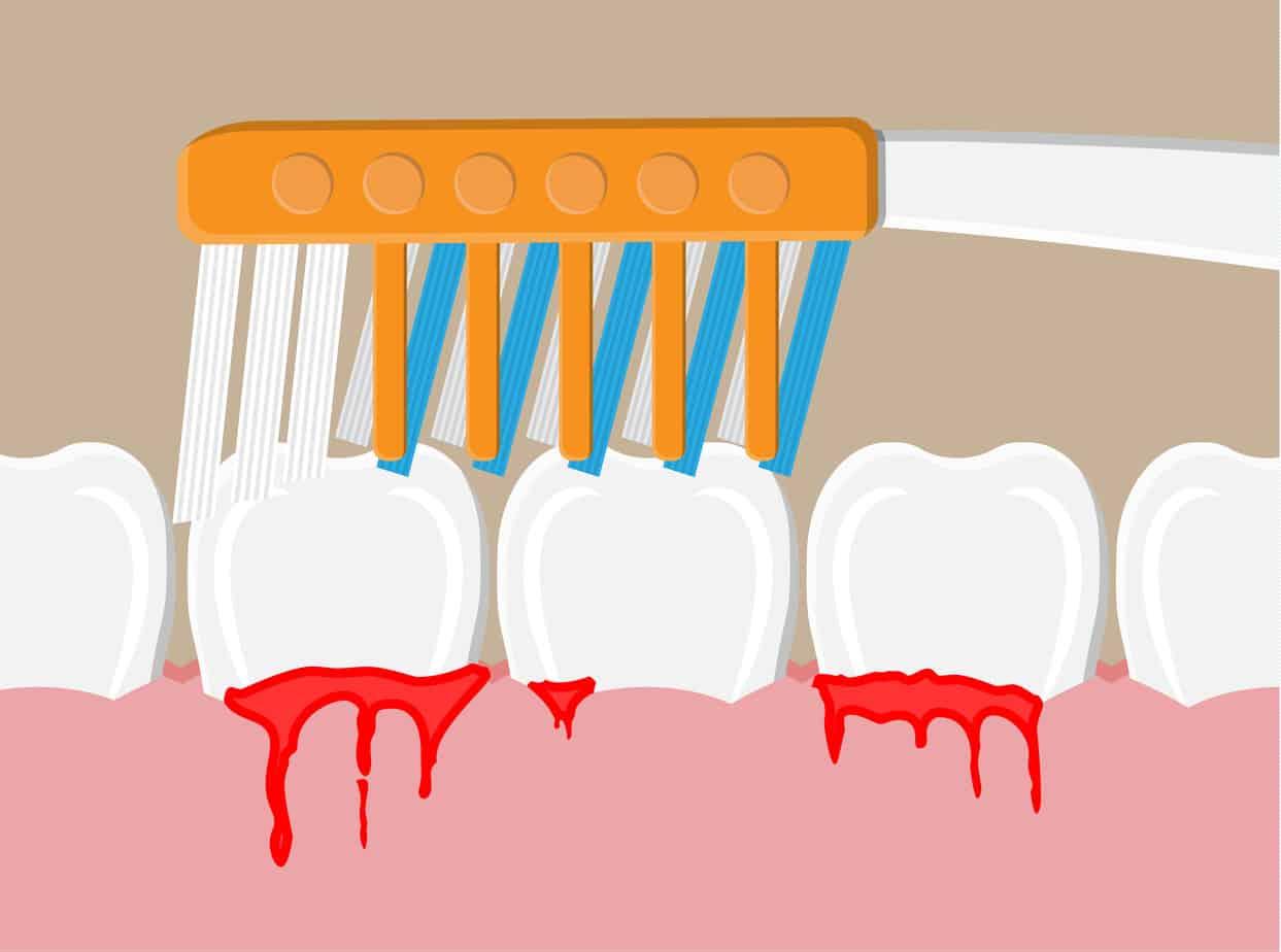 bleeding gum periodontal disease
