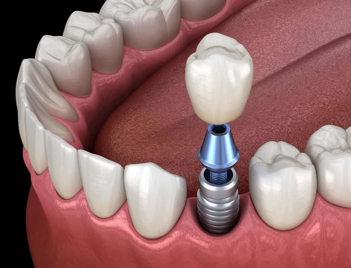 Full Mouth Dental Implants Gold Coast
