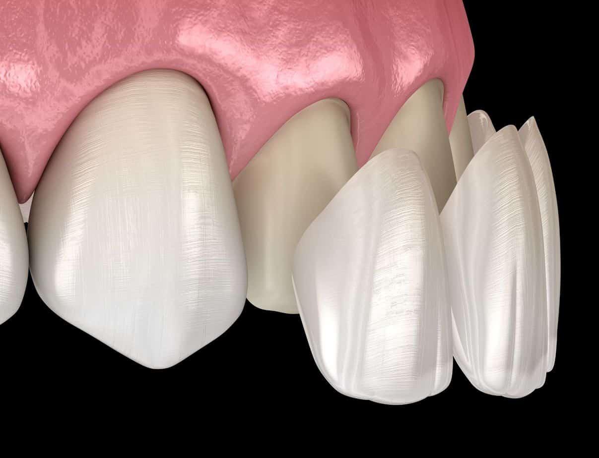 dental veneers procedure southport gold coast