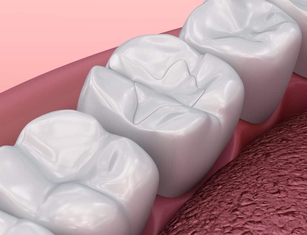 dental fillings cosmetic procedure southport gold coast