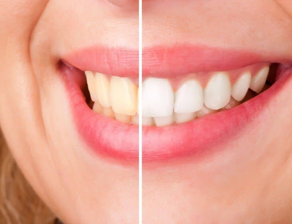 southport teeth whitening gold coast