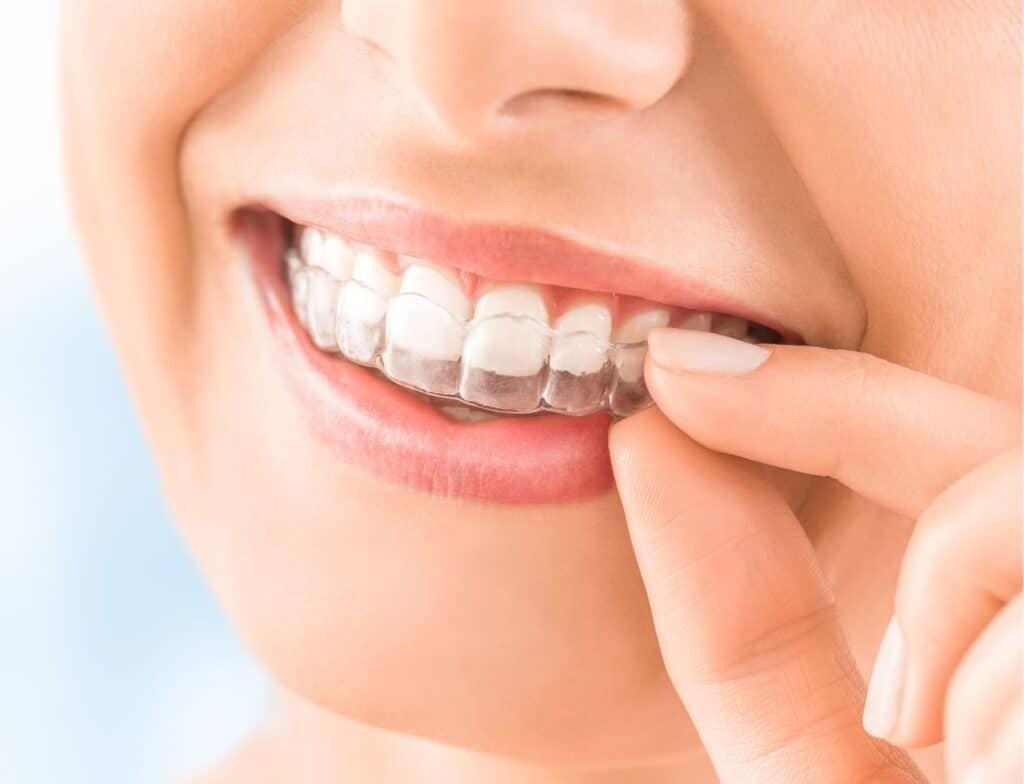 Teeth Straightening Gold Coast