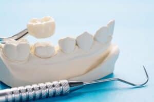 closeup prosthodontics prosthetic single teeth crown bridge equipment model express fix restoration 2
