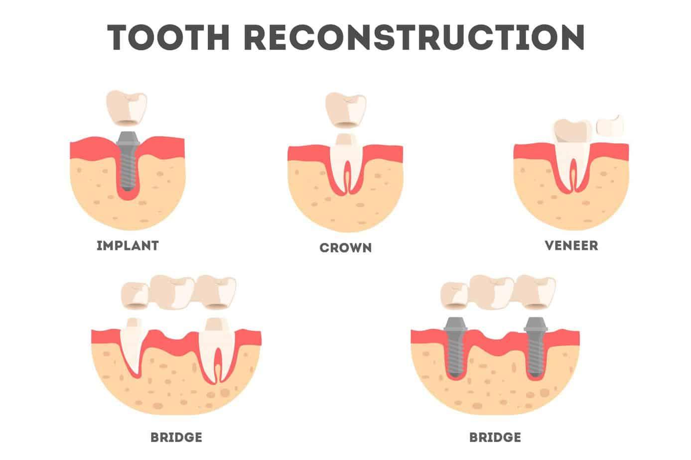 dental crown ve