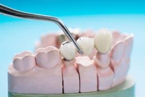 prosthodontics prosthetic