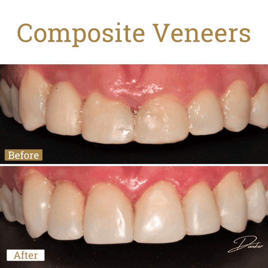 Composite Veneers Gold Coast at Artsmiles Dentist Southport