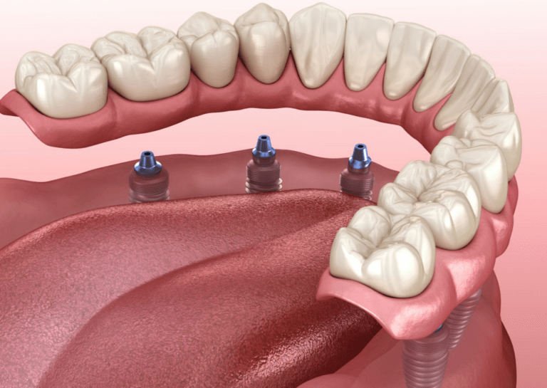All-On-4 Dental Implants by Artsmiles Dental Services Southport