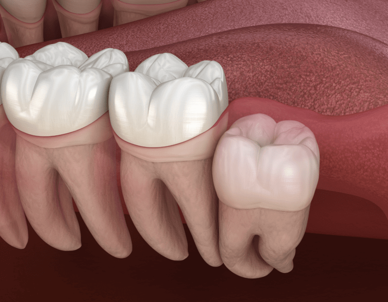 Wisdom Tooth Removal Southport