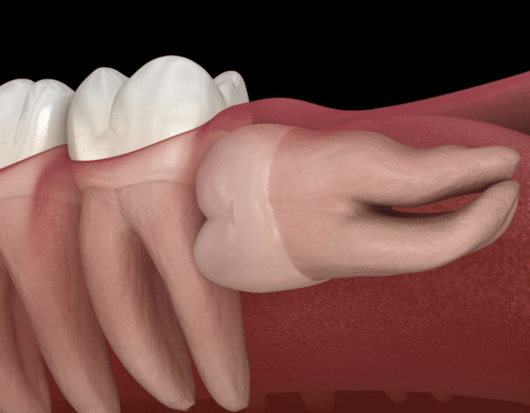 Wisdom Tooth Extraction Southport