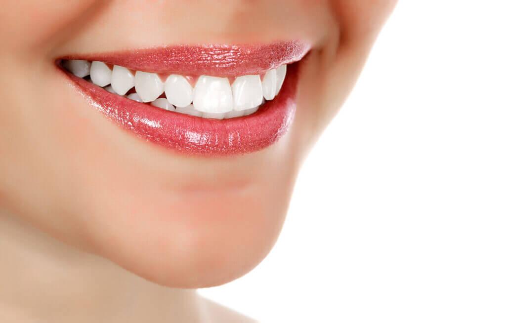 Professional Teeth Whitening ArtSmiles Dentist