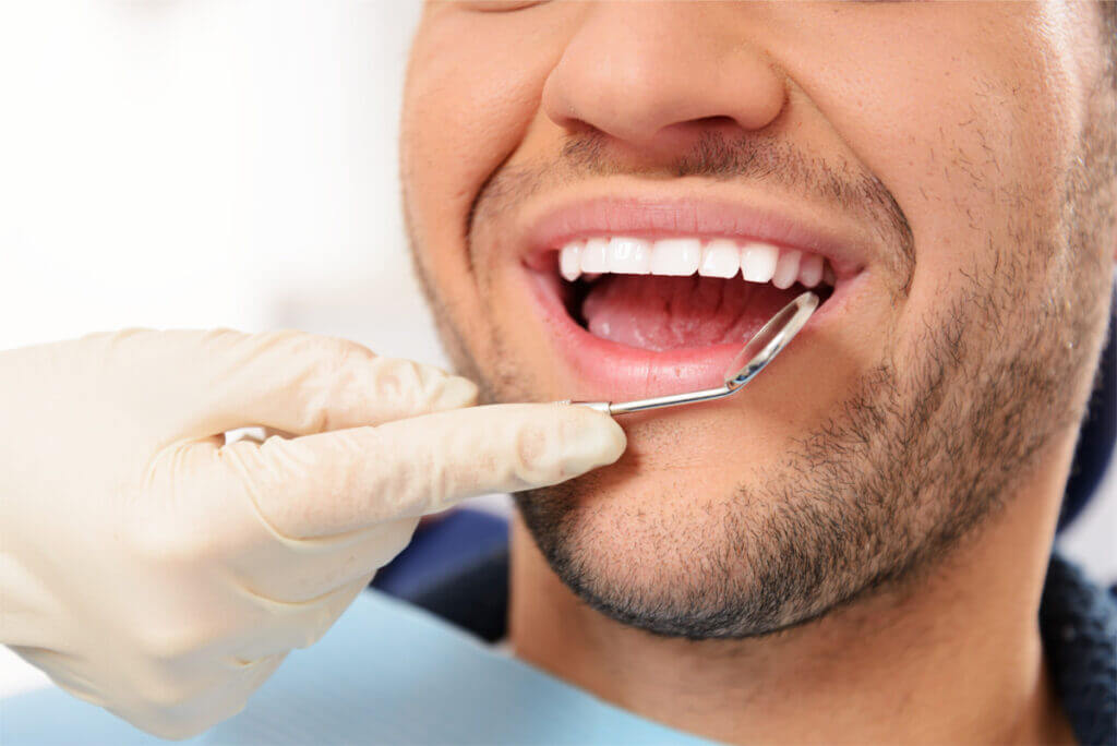 Professional Teeth Cleaning At ArtSmiles Dental Clinic
