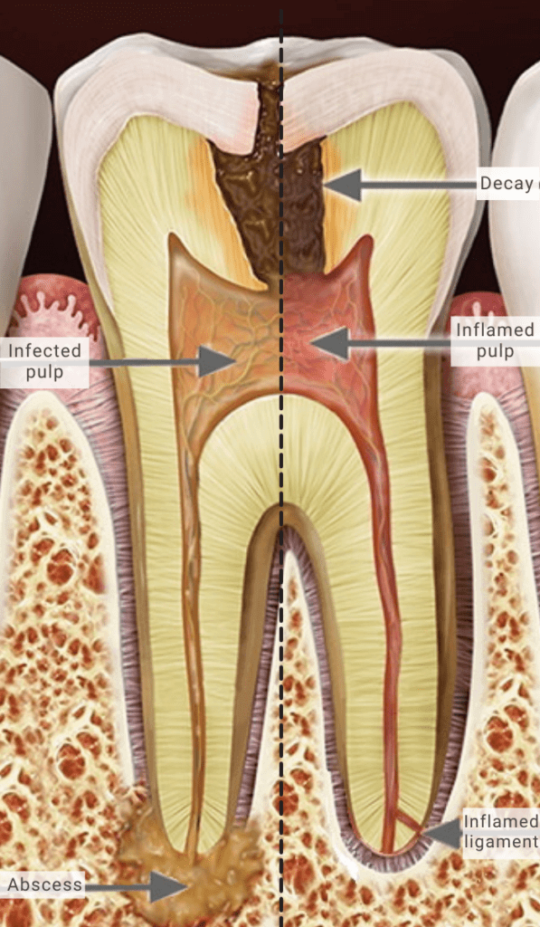 Root Canal Southport